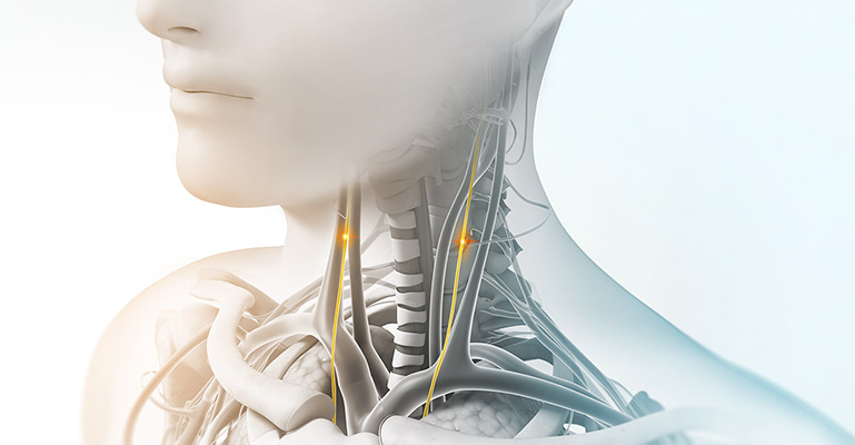 Medical art showing the vagus nerve